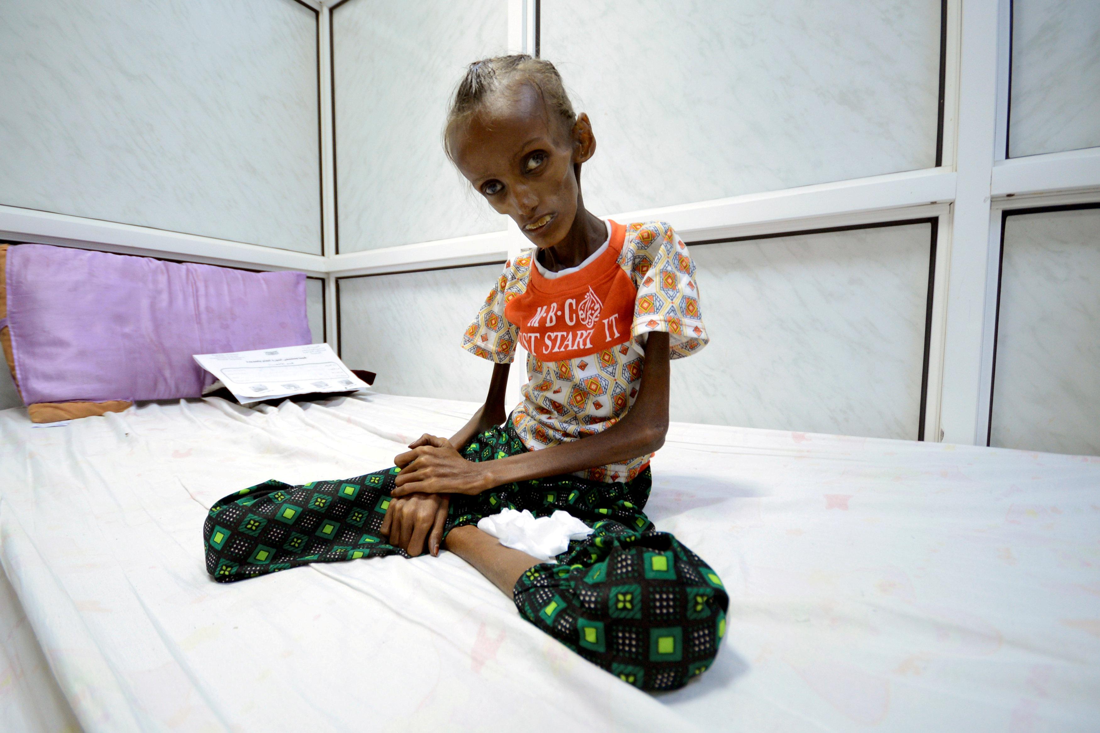 ブログ:体重11キロから奇跡の回復、イエメン少女の希望と不安 | Reuters