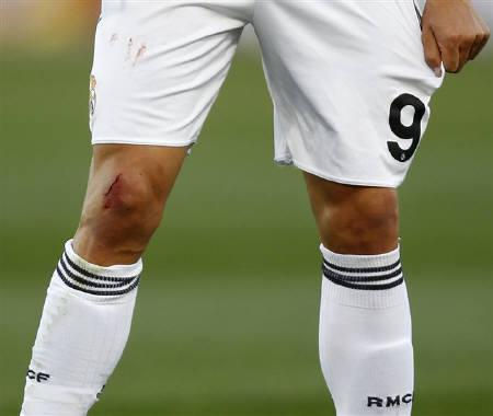 Knee Ligament Tears Often Need No Surgery Study Reuters