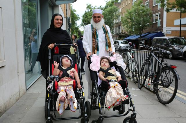 Two-year-old twins, born joined at the head, leave the hospital after a successful surgery at a British hospital in London, Britain July 1, 2019, in this handout photo released on July 16, 2019.  GREAT ORMOND STREET/Handout via REUTERS