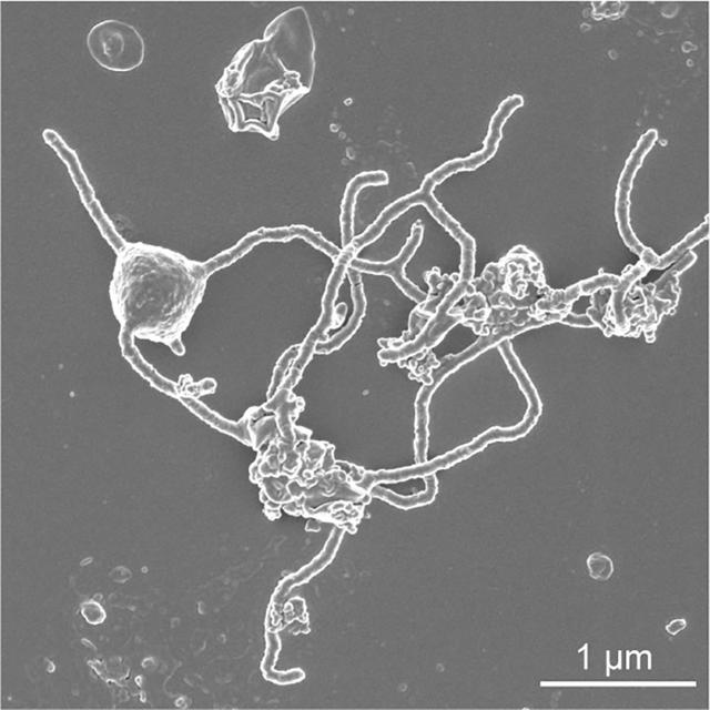 A scanning electron microscopy image of the single-celled organism Prometheoarchaeum syntrophicum strain MK-D1 showing the cell with tentacle-like branching protrusions is seen in this image released at the Japan Agency for Marine-Earth Science and Technology (JAMSTEC) in Yokosuka, Japan on January 15, 2020. Hiroyuki Imachi, Masaru K. Nobu and JAMSTEC/Handout via REUTERS